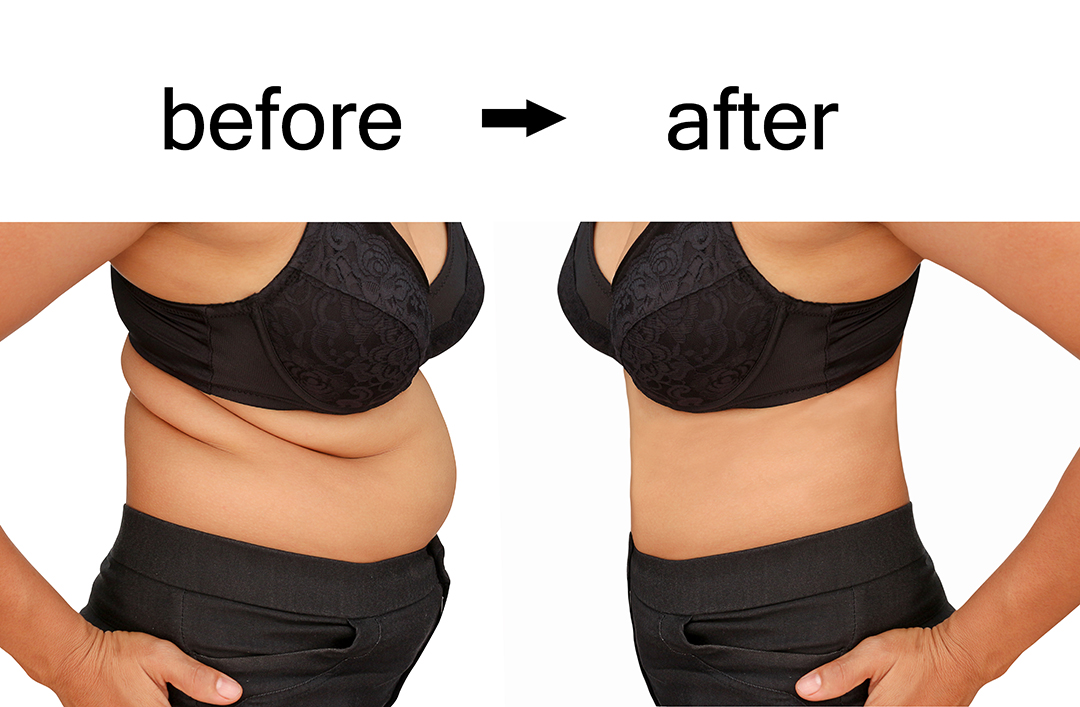 non invasive liposuction